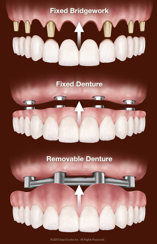 replacing-all-teeth-with-dental-implants