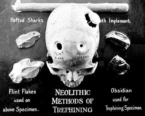 neolithic_trepanning_tools_T_Wilson_Parr