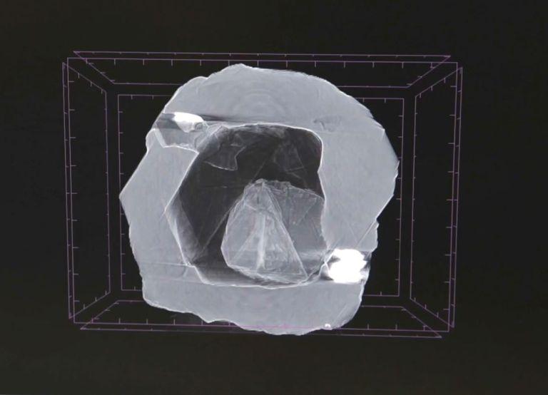 x-ray-view-jpg-1570552474.jpg?resize=768