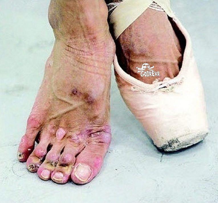 566266d1409437029-ballerina-foot-injurie