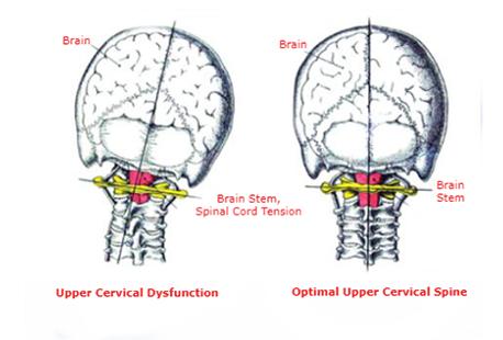 cervical-image.png.e1cf7c4bd2157842e539469776f17fda.png